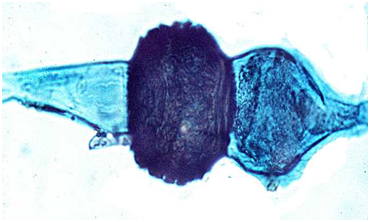 Rhizopus asexual reproduction advantages