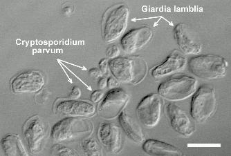 cryptosporidium parvum transmission and infection Spread only between humans but that the major reservoir for cryptosporidium parvum severe disease as a results of cryptosporidium infection transmission for.