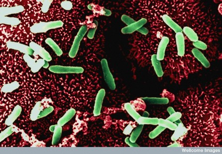 Clostridium difficile bacteria inside the intestine (Used under creative commons license from Wellcome Images Online)
