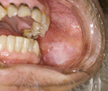 Symptoms of Mono |Symptoms,causes,Diagnosis and Treatment of Mono